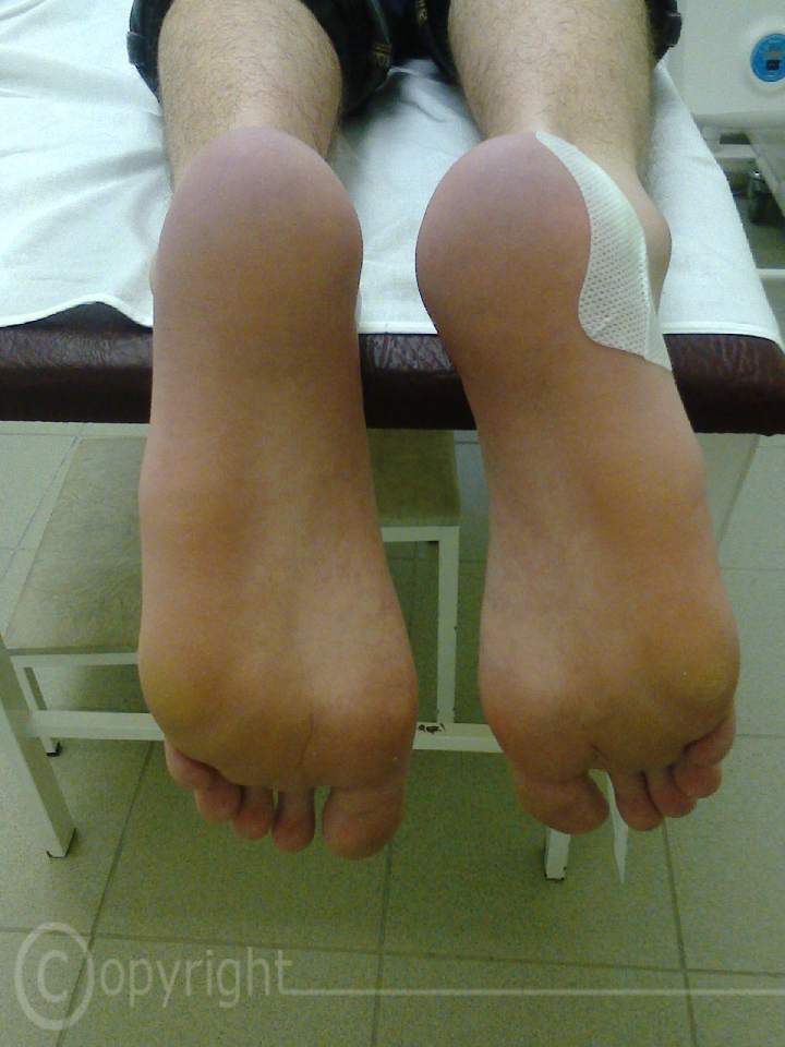 Эритромелалгия фото
