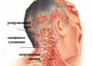 Боль за ухом отдает в руку шею
