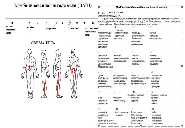 характеристики болевого