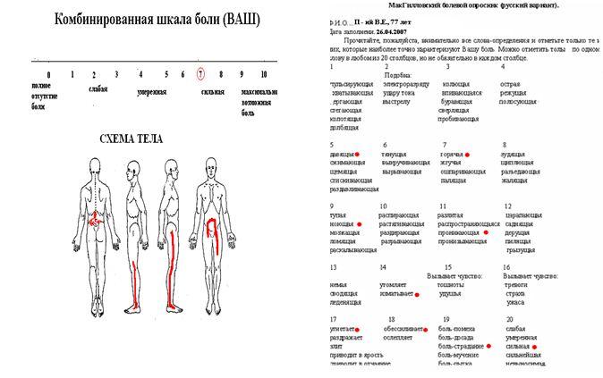 Схема тела у пациента с