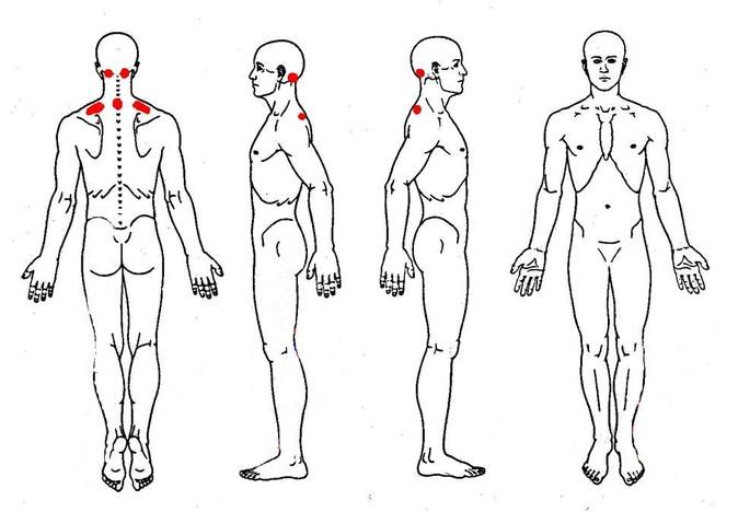 «Схема тела» до проведения